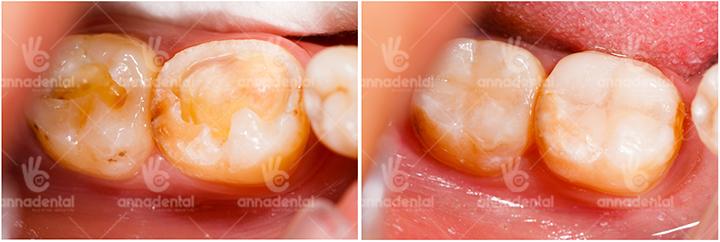 Phục hồi mô răng và thẩm mỹ