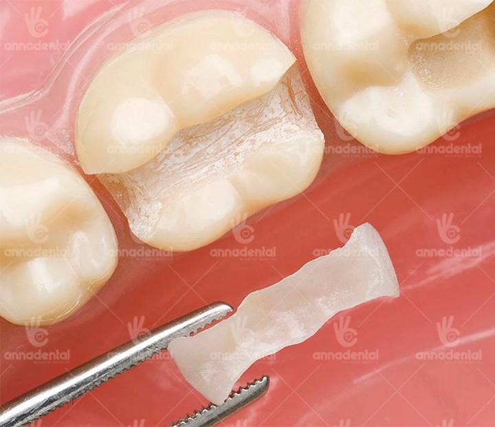 Trám răng inlay/onlay