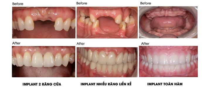 Hạn chế bệnh răng miệng