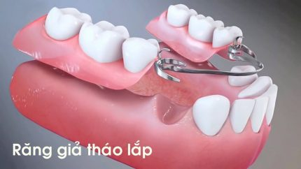 Công nghệ răng tháo lắp mang tính thẩm mỹ cao